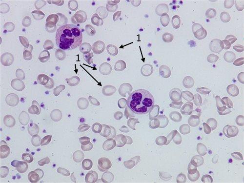 Mikrosytoosi