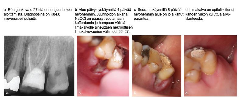 Apikaalinen Parodontiitti